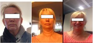 photo visage avant et après